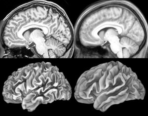 variations in brain surfaces