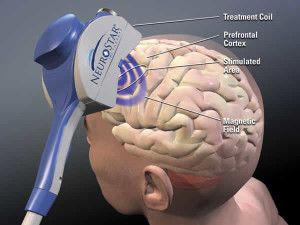 The NeuroStar TMS Therapy system, developed by Neuronetics
