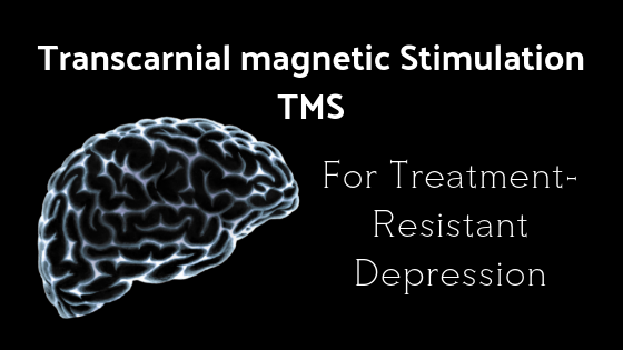 Transcranial magnetic Stimulation TMS